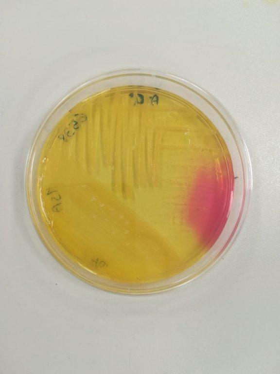 Staphylococcus aureus su mannitol salt agar